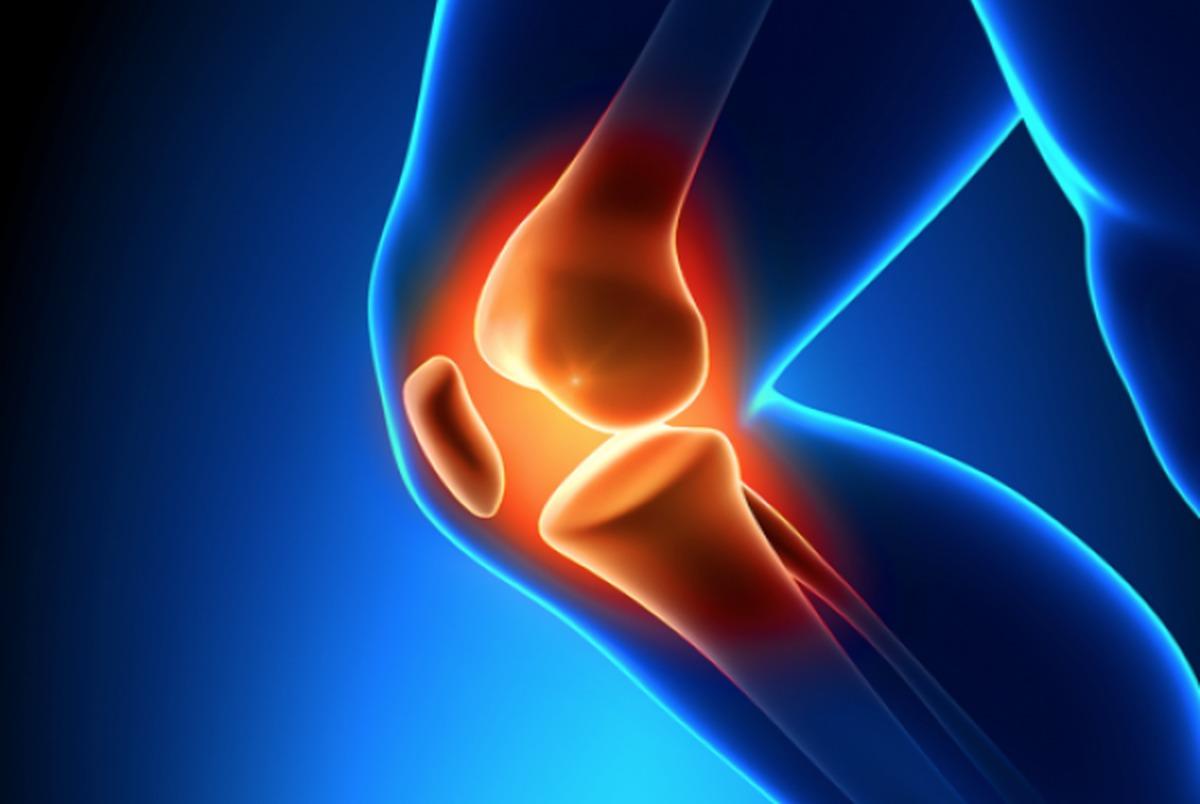 پادزهری برای درمان آرتروز
