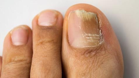 6 درمان خانگی برای قارچ ناخن انگشت