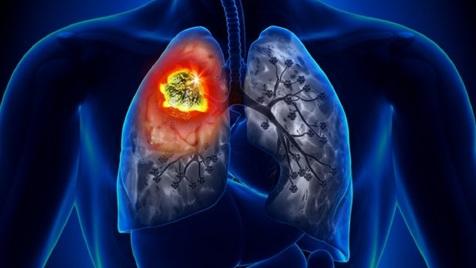علائم هشداردهنده سرطان ریه که باید جدی بگیرید