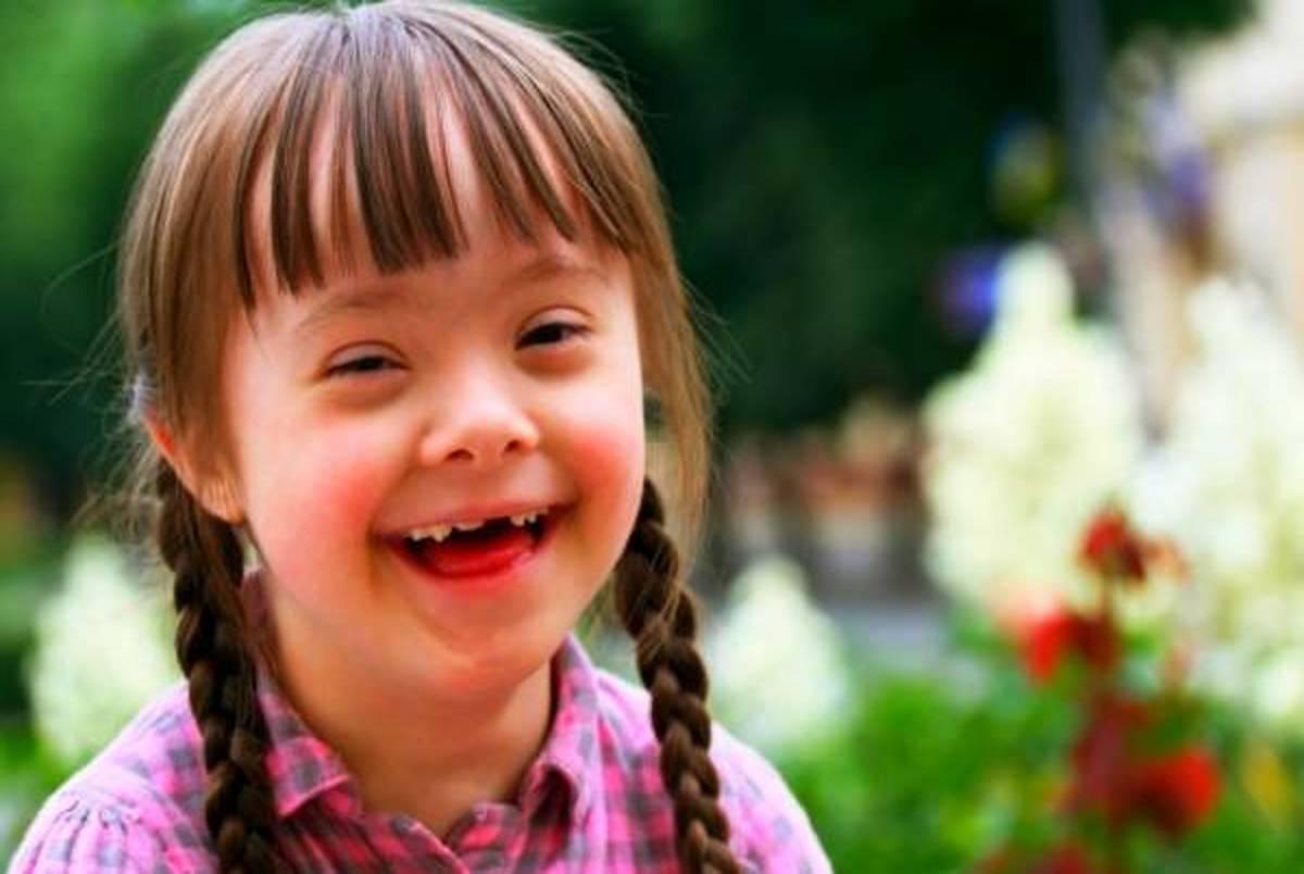 کودکان مبتلا به سندرم داون هم میتوانند دو زبانه باشند