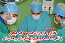 خارج کردن توده بزرگ کبدی از آقای ۲۲ ساله جویباری در بیمارستان روحانی بابل