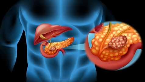 علائم اولیه سرطان لوز المعده را بشناسید