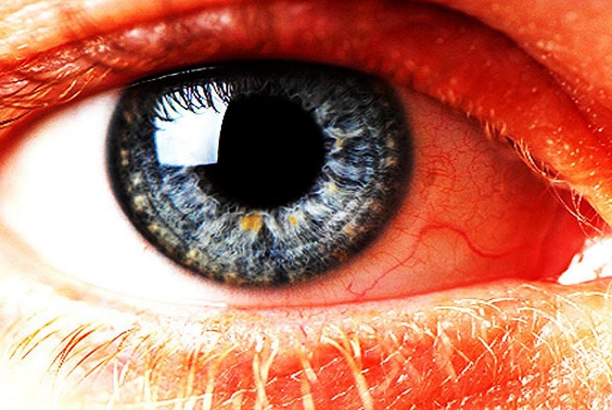 ۱۲ علامت ترسناک که خبر از بیماری چشم میدهند