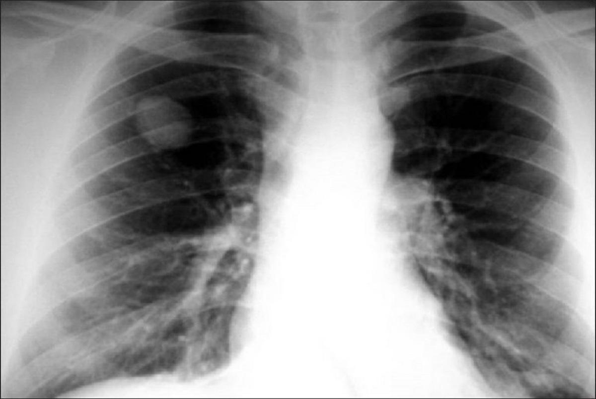 تشخیص نوع تومورهای سرطانی ریه در کمتر از نیم ساعت