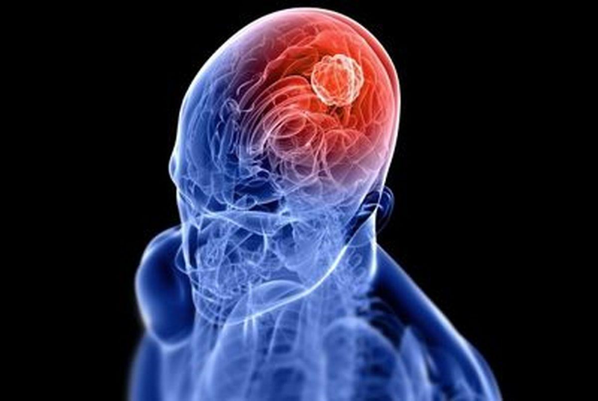 با این کلاه تومور مغزی کوچک می شود