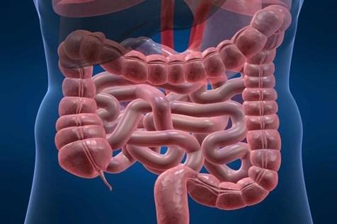 این بیماری خاموش روده بزرگ را دچار التهاب میکند