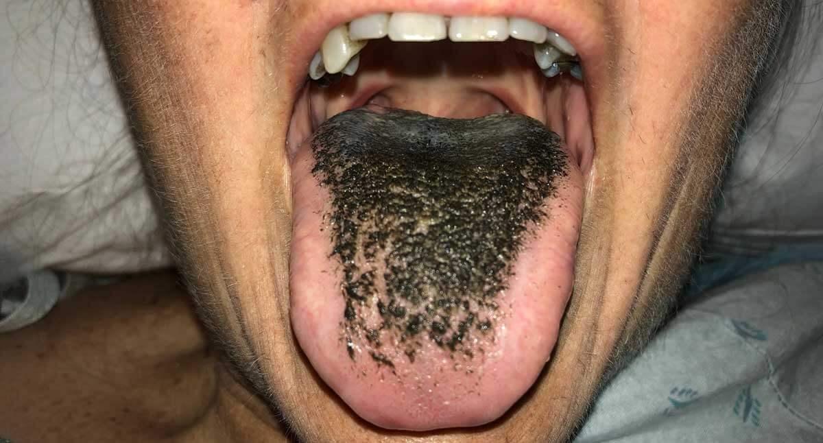 زبان مودار سیاه
