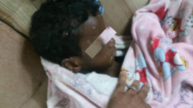 هشدار/ حاوی تصاویر دلخراش؛ کودک آزاری وحشتناک در بوشهر