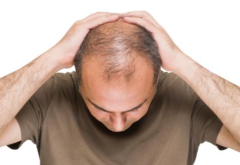 درمان ریزش مو با برگ های گواوا؟!