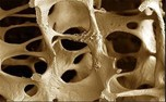 چگونه پوکی استخوان را با ورزش درمان کنیم؟