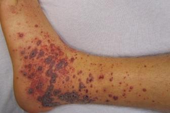 علامتی دردناک در پوست که نشانه سرطان است