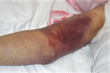 تب کریمه کنگو در خراسان شمالی یک قربانی گرفت