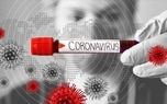 مردهایی که ریش دارند، بیشتر در خطر ابتلا به ویروس کرونا هستند/ عکس
