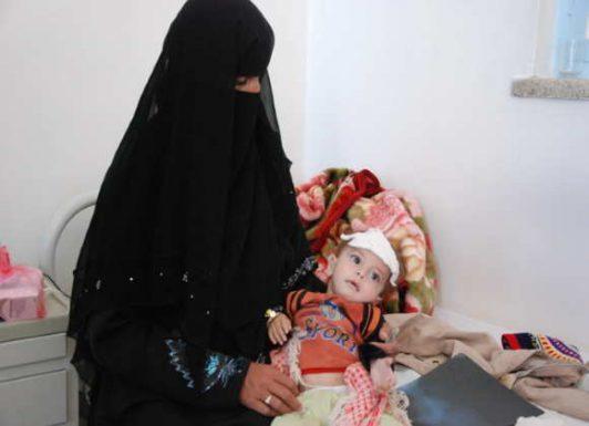 ارمغان جدید حکومت های عرب:یمن فقیرترین کشور جهان می شود