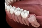 کشیدن دندان عقل چه تاثیری بر حس چشایی دارد؟