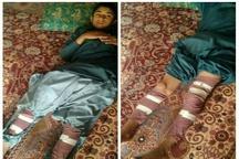 تکرار حادثه آتشسوزی چراغ نفتی در سیستان و بلوچستان  اینبار دو پای دانشآموز زهکی سوخت
