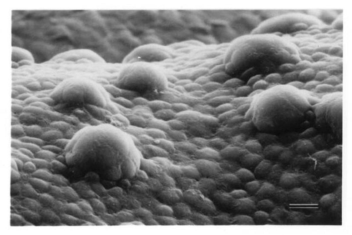 سلولهای انسان مادهای میسازند که میکروبها را از بین میبرد
