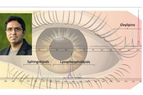 ابداع روشی برای تشخیص بیماری های چشمی توسط دانشمندان ایرانی