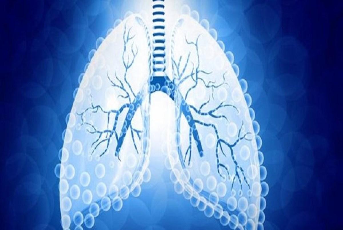 علائم غیرمنتظره سرطان ریه